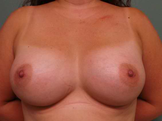thumb_breast_aug_1_after