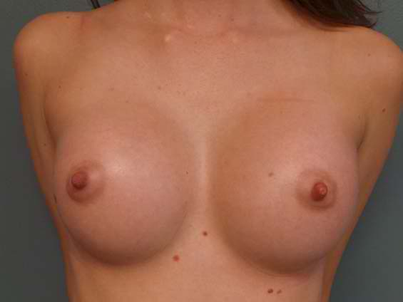 thumb_breast_aug_2_after