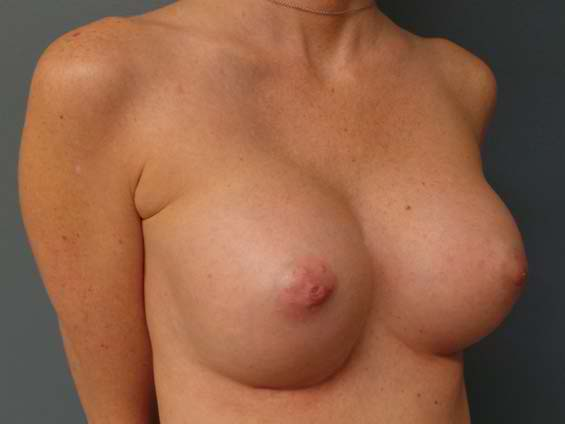 thumb_breast_aug_3_after