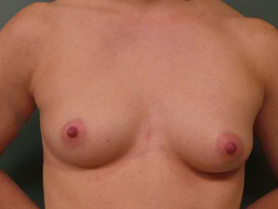 thumb_breast_aug_6_before