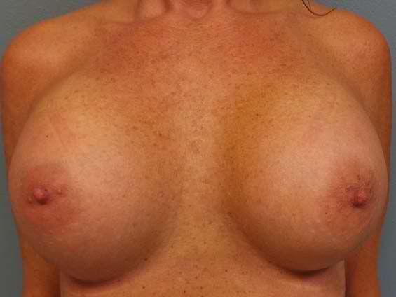 thumb_breast_aug_7_after