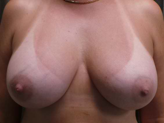 thumb_breast_aug_9_after